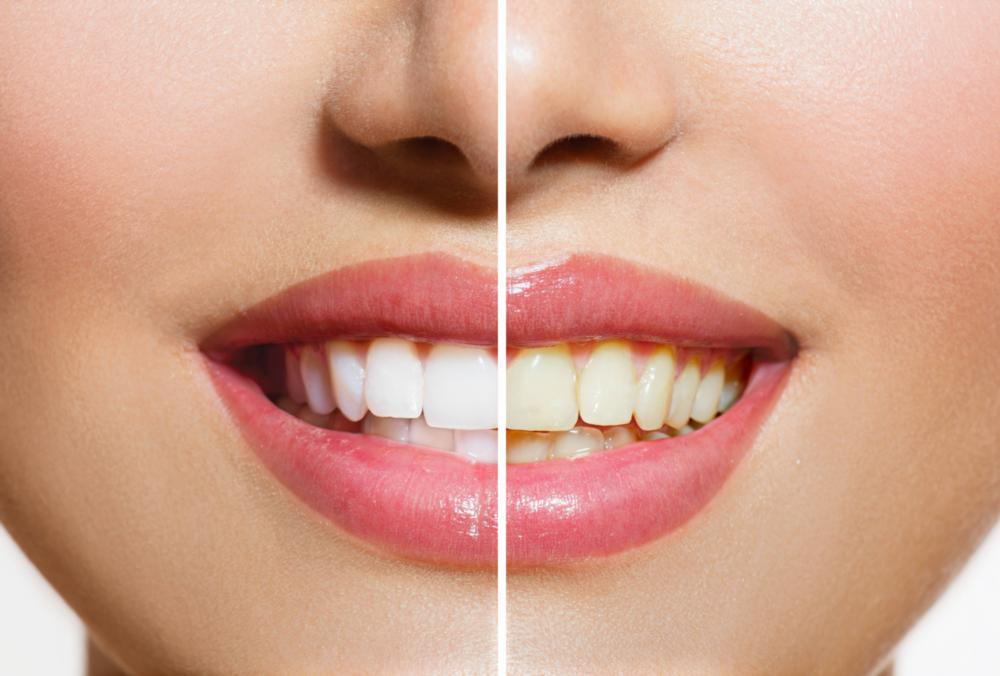 Teeth Whitening | Bayside & Fairfield NSW