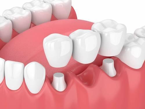 Dental Bridges in Bayside VIC