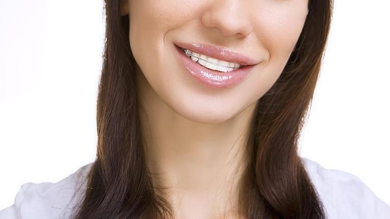 Smile with Retainer | Sparkle Dental Care