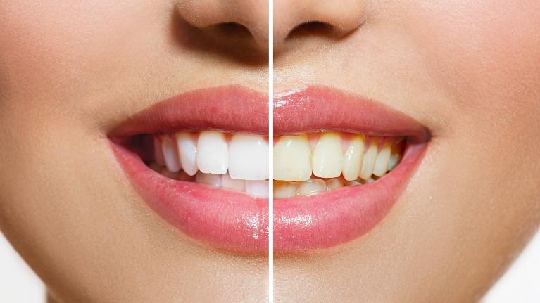 Teeth whitening example in Hampton VIC