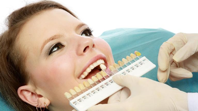 Teeth Whitening | Sparkle Dental Care