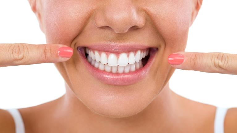 Smile | Invisalign Fairfield Dentist