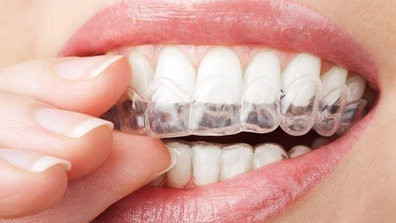 Invisible Braces | Bayside VIC Dentist