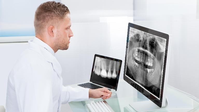 Dentist with X-Rays | Sparkle Dental Care