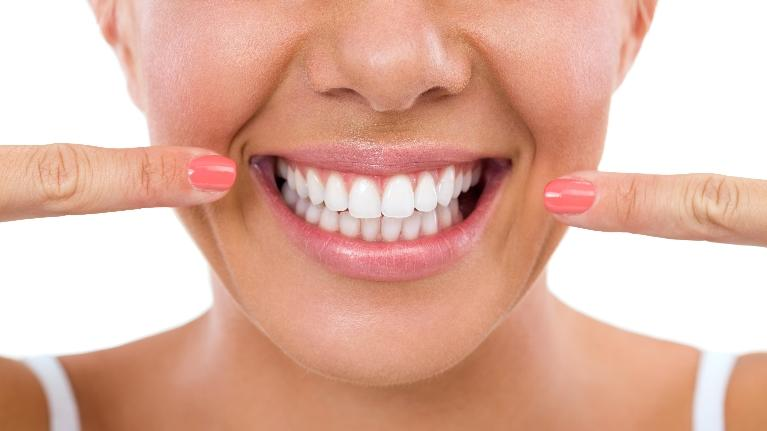 Woman Smiling | Sparkle Dental Care