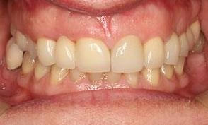 patient with new crowns and bridges in bayside vic