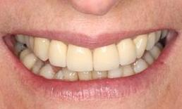 Patient after dental crowns Fairfield VIC