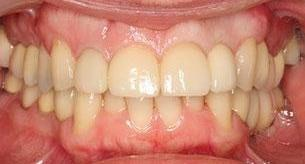 After Full Mouth Reconstruction in Bayside VIC