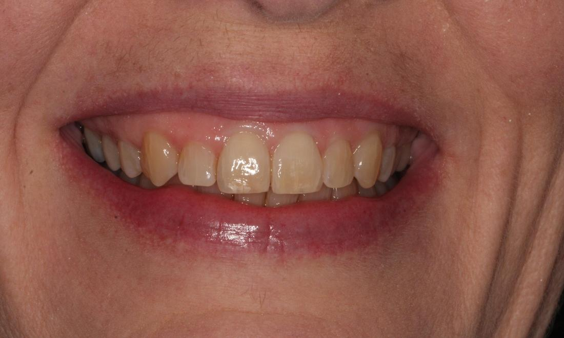 Invisalign After Results | Fairfield VIC