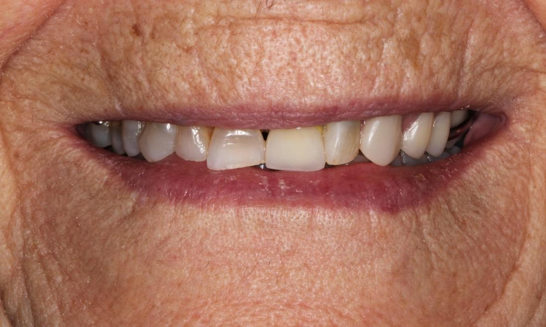 Patient with new partial dentures in Bayside