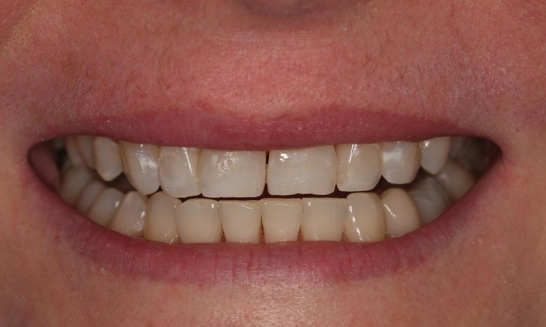 Teeth Whitening After Photo | Bayside Dentist