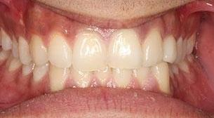 patient after veneers | fairfield