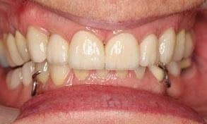 Patient after full mouth rehabilitation | Fairfield VIC