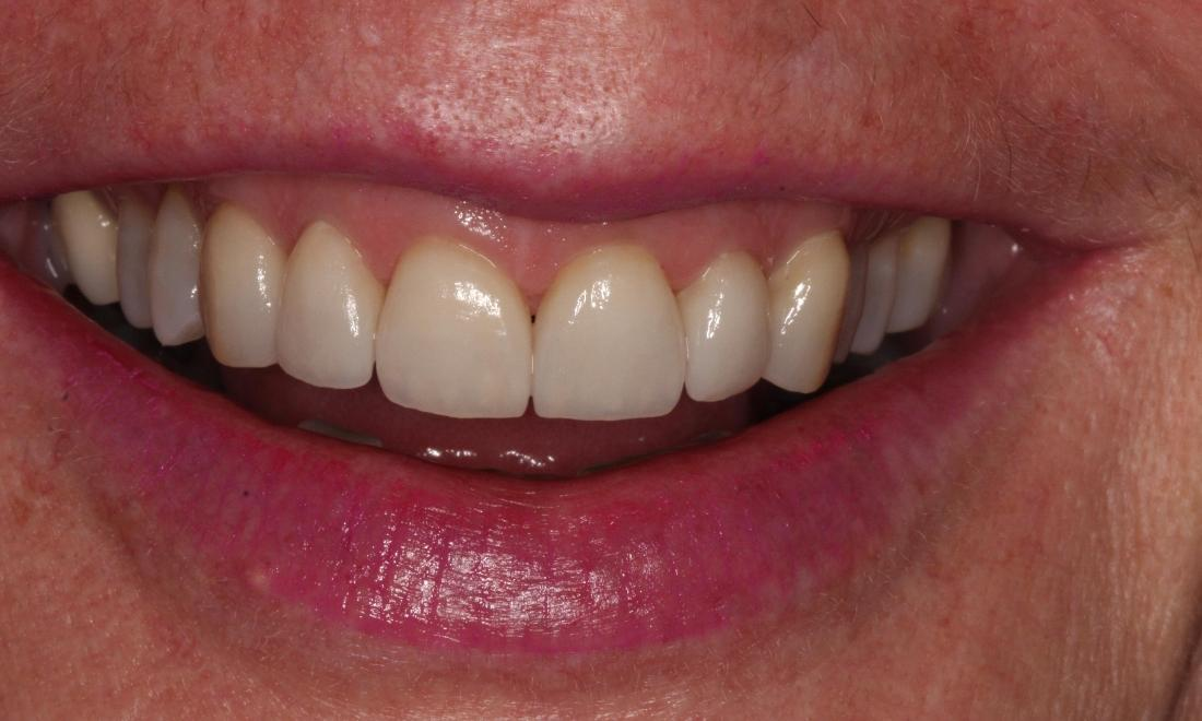 patient with new veneers in Brighton