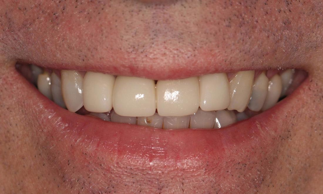 Whitening and CEREC Crown in Bayside VIC