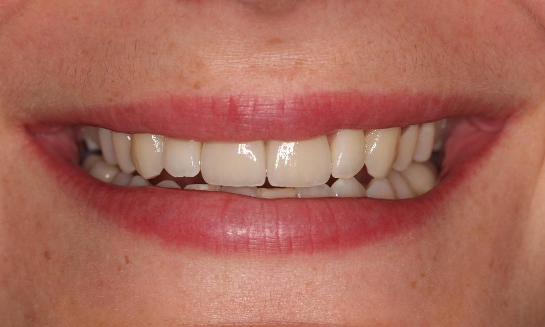 Patient after veneers | Bayside VIC