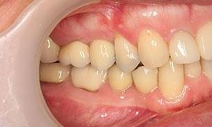 Full Mouth Reconstruction Results | Hampton VIC