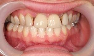 Patient before dental crowns and bridge | Bayside VIC