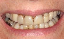 Patient before dental crowns Fairfield VIC