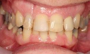Before Full Mouth Reconstruction | Bayside VIC