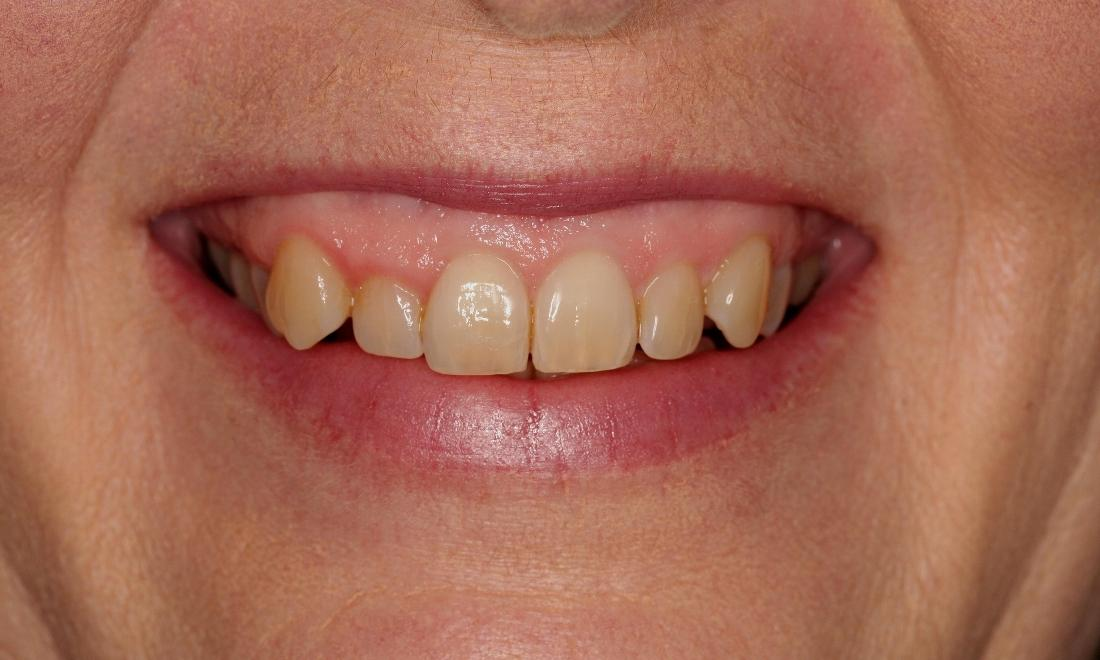 Invisalign Before Photos | Fairfield VIC
