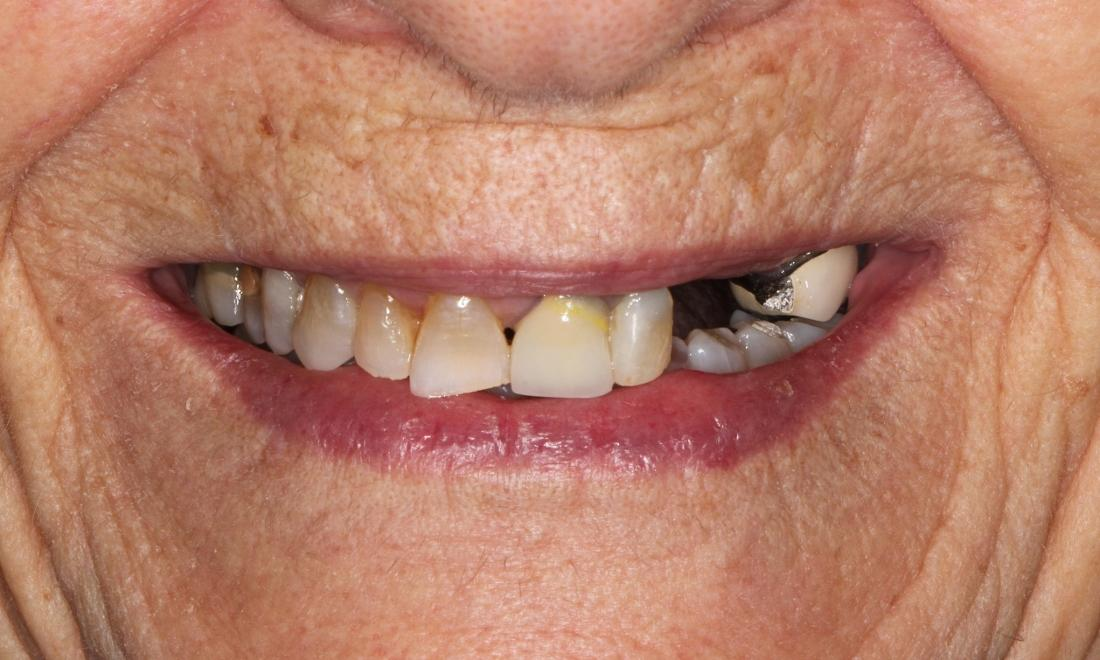 patient before partial dentures in Bayside