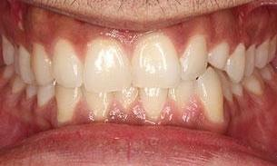 patient before veneers | Fairfield