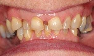 Patient before full mouth rehabilitation | Fairfield VIC