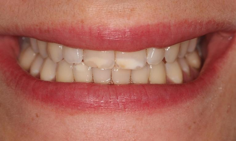 Ceramic-Veneers-and-Composite-Resin-in-Bayside-VIC-Before-Image