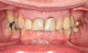 New-Crowns-Replace-Old-Crowns-in-Fairfield-VIC-Before-Image