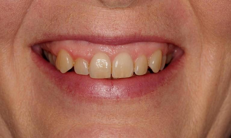 Invisalign-to-ease-crowding-in-Fairfield-VIC-Before-Image